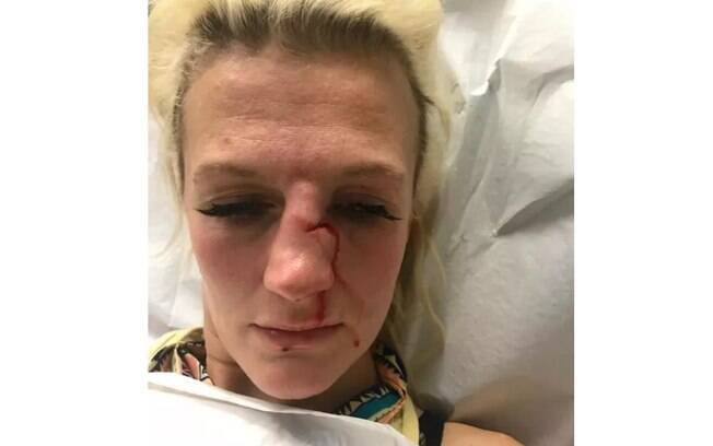 Lutadora mostrou rosto após ser agredida por ex