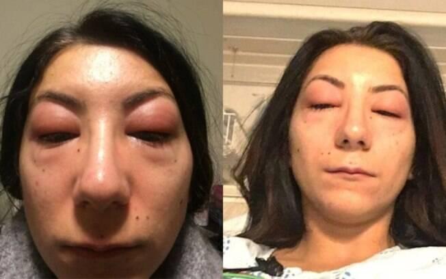 Isabelle Kun teve uma reação alérgica forte por causa da cola utilizada na colocação da extensão de cílios