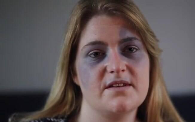 Médicos não sabem explicar as manchas azuis no rosto de Adele e nem mesmo os outros sintomas que surgiram