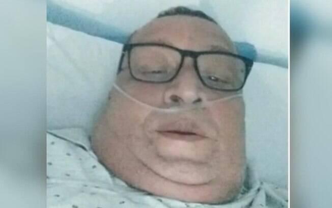 Homem de 59 anos morre à espera por leito de UTI em Sumaré