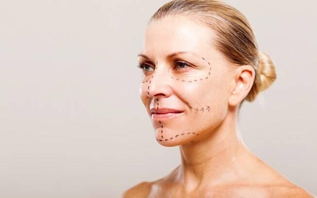 Lifting facial é um procedimento cirúrgico e o resultado dura em torno de cinco a sete anos