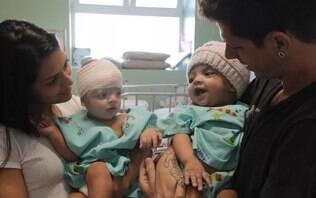 Gêmeas siamesas separadas por cirurgia raríssima recebem alta de hospital no DF