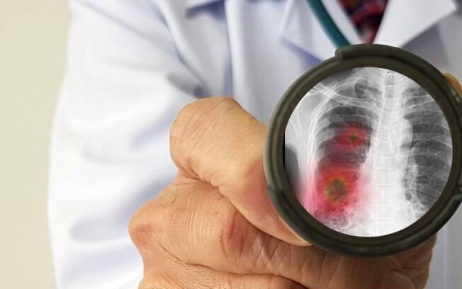 ilustração do vírus no pulmão de um paciente