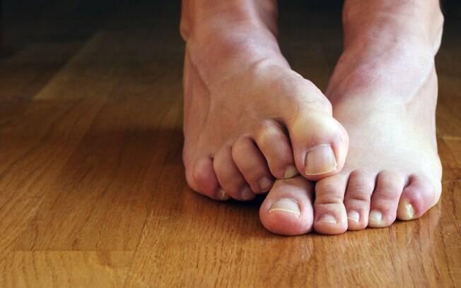 A primeira fase do estresse, a fase de alerta, pode causar mãos e pés frios