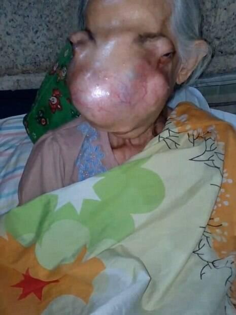 Idosa teve o rosto completamente desfigurado em consequência do crescimento do papiloma invertido nasal