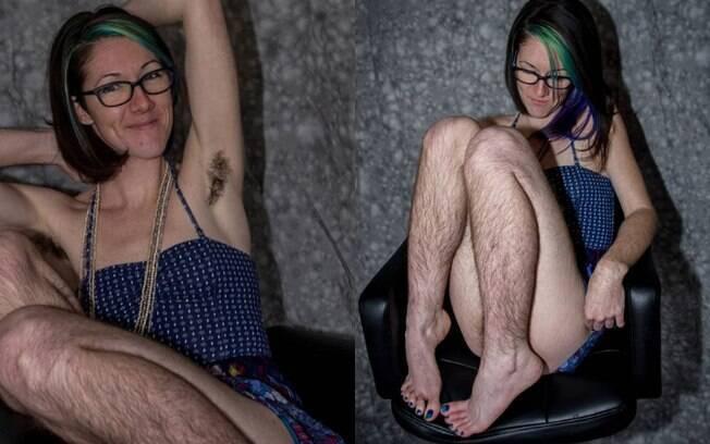 Dana tem uma condição chamada hirsutismo, ou seja, excesso de pelos no corpo, e decidiu parar totalmente de se depilar
