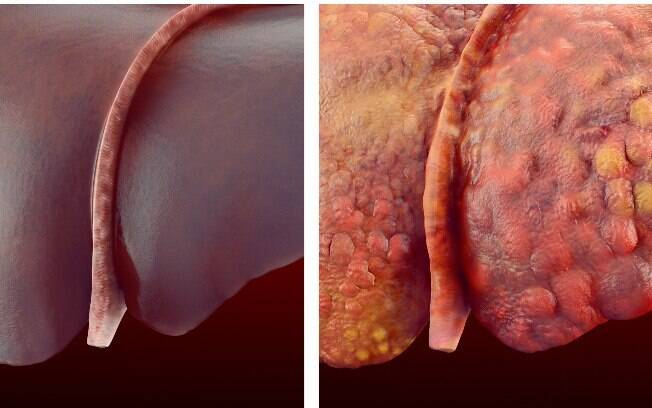 Comparação gráfica de um fígado saudável e outro com cirrose