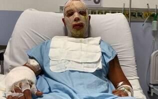 """Prefeito de Osasco e esposa não terão """"deformidades faciais"""", diz boletim médico"""