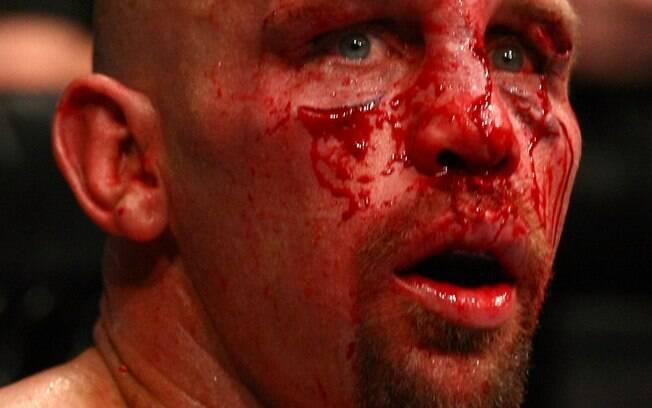 Shane Carwin - Lutadores do UFC ficaram  desfigurados após batalhas dentro do octógono