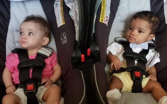 Esse fenômeno é mais comum, principalmente, em gêmeos. Geneticista explica o que pode influenciar a cor de pele