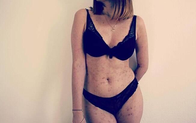 A jovem passou a aceitar o corpo com cicatrizes e, agora, ajuda outras pessoas que passam pela mesma situação