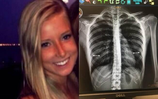 Sydney Allen tentou esconder o piercing nos mamilos da mãe, mas ao fazer um raio X ela foi descoberta