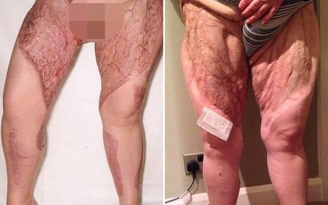 Depois de fazer depilação, bactéria entrou em contato com tecidos profundos da pele de mulher que teve sua pele