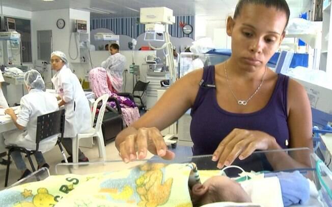 Até o momento, apenas um bebê afetado por zika foi operado e outros seis aguardam para fazer as correções ortopédicas