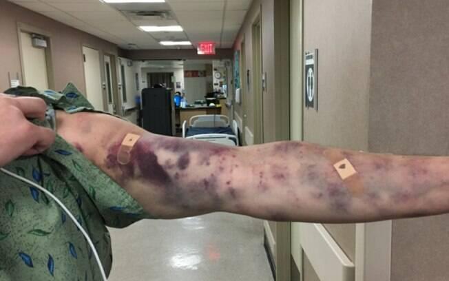 Em poucas horas, o local da picada ficou completamente tomado de hematomas, afirmou a esposa de Thomas Petrov
