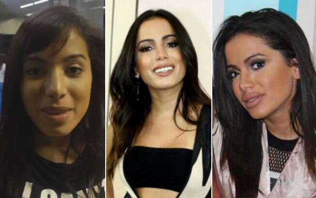 A transformação de Anitta