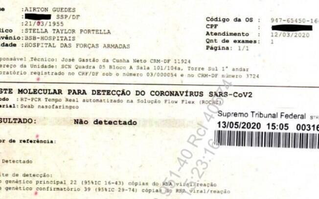 Primeiro exame entregue ao Supremo Tribunal Federal, em processo sobre testagem de Jair Bolsonaro