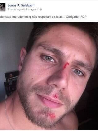 Jonas Sulzbach mostra imagem com machucados no rosto em sua página do Facebook