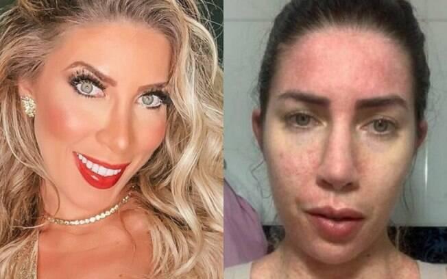 Antes e depois da cirurgia de Tati Minerato