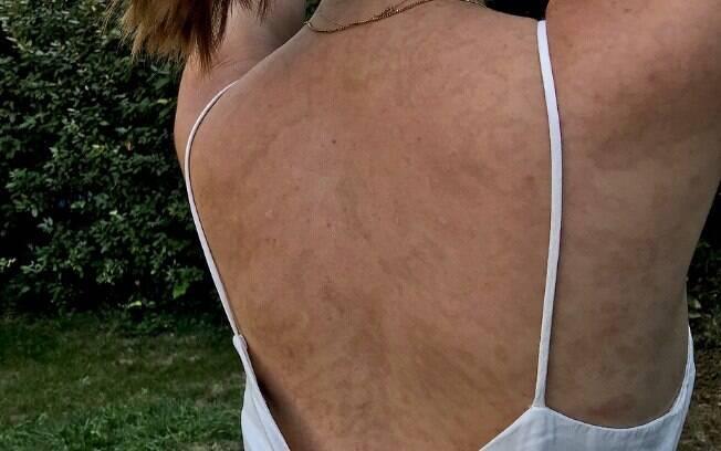 Doença rara que afetou Camille causa bolhas e descamação na pele – mas ela conseguiu aceitar o corpo com cicatrizes