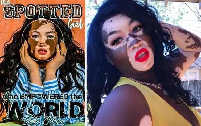 A modelo irá lançar um livro que fala sobre uma adolescente que começou a ter vitiligo no primeiro ano do ensino médio