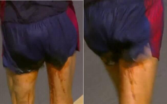 Yohann Diniz não aguentou a dor de barriga
