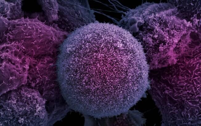 Nova técnica pode diminuir número de sessões de radioterapia no tratamento de câncer de próstata