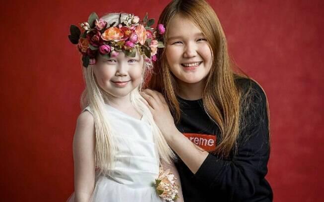 Nariyana aparece com a irmã, Karina, mostrando as características contrastantes entre a albina e outras pessoas