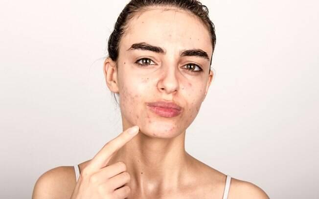 Uma espinha surgiu bem no meio do seu rosto? Dermatologista mostra passo a passo de como eliminar as espinhas; veja