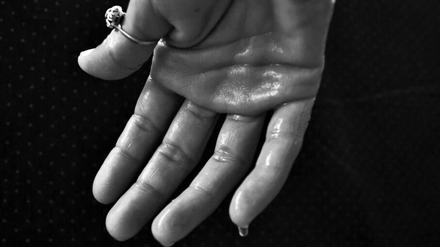 A hiperidrose nos pés e mãos é a mais comum