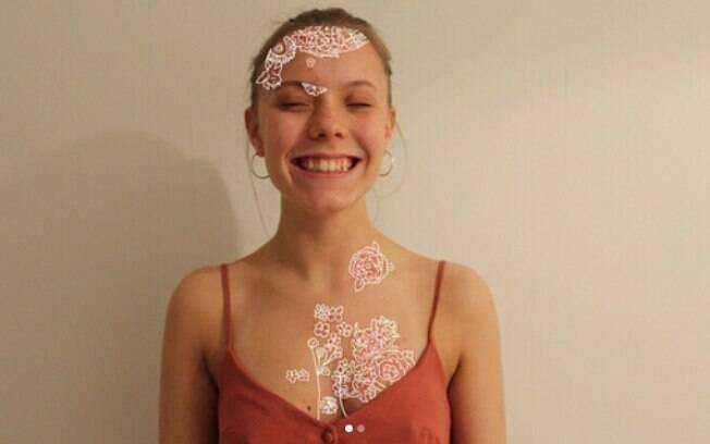 As manchas na pele de Molly Mathews são causadas por psoríase e jovem declara que isso não é motivo para se esconder