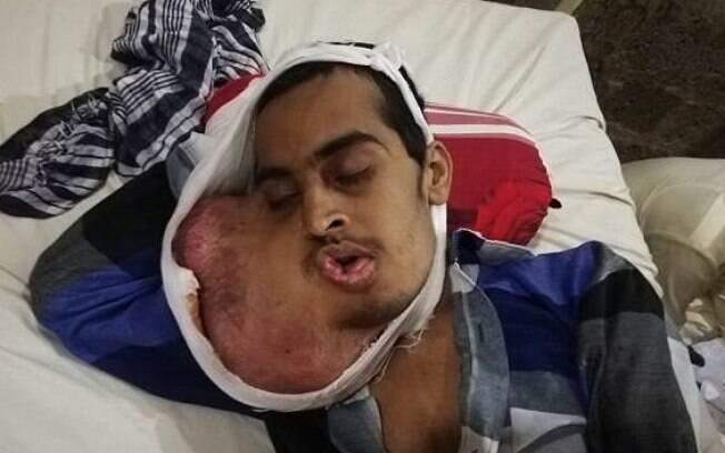 Muhammad Farooq, de 21 anos, arrancou dente em clínica ilegal e oito meses depois descobriu infecção e câncer bucal