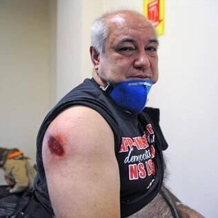 Ato de professores termina com mais de 200 pessoas feridas no Paraná