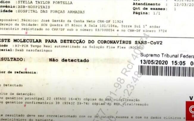 Exames de Bolsonaro foram exibidos pela CNN Brasil na tarde de hoje, 13
