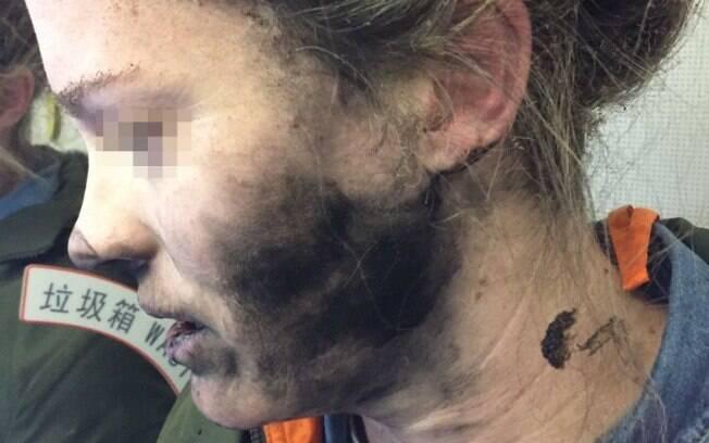 Australiana sofre queimaduras depois de fone de ouvido explodir durante voo