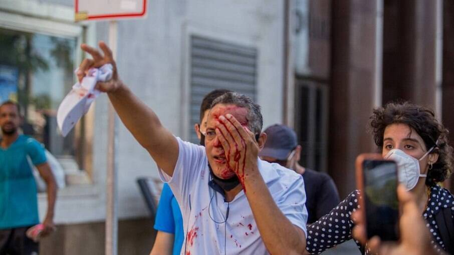 Homem ferido no olho por tiro de bala de borracha disparado pela PM em Recife