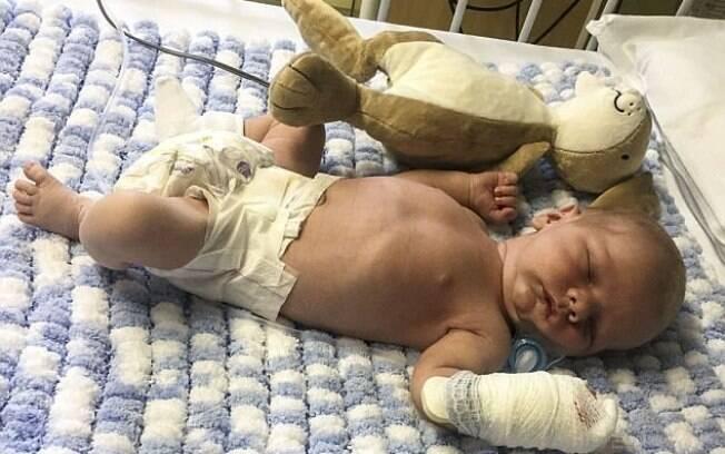 Bebê recém-nascido pode ter pegado meningite viral através de um beijo