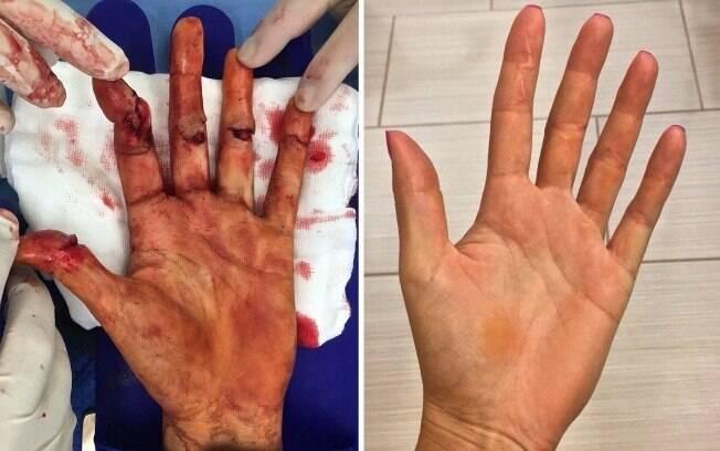 Antes de depois da mão de Kvitova. Ela sofreu lesões com faca em dezembro do ano passado