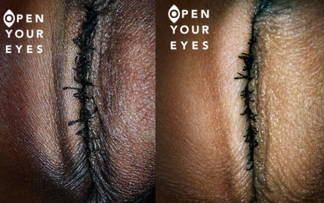 Campanha de organização alemã contra a mutilação genital feminina chamou atenção pela criatividade e ousadia