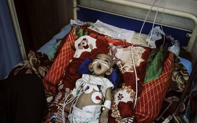 Ônibus que transportava crianças com menos de 10 anos de idade no norte do Iêmen foi atacado nesta quinta