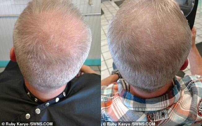 Foto à direita mostra crescimento do cabelo do namorado de Ruby após ele iniciar o tratamento com o xixi