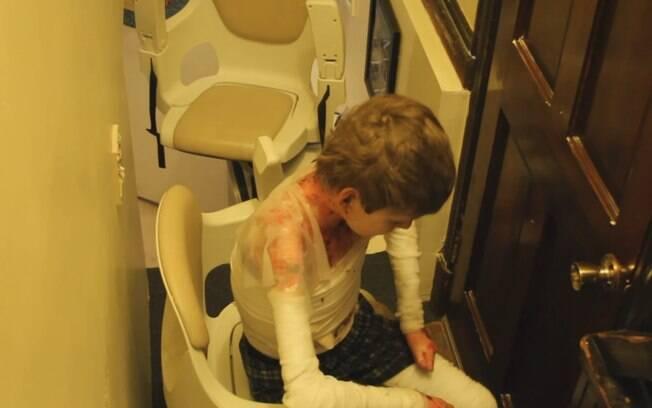 Espaço para John se sentar no equipamento que o ajuda a subir e descer a escada para o banheiro já está pequeno