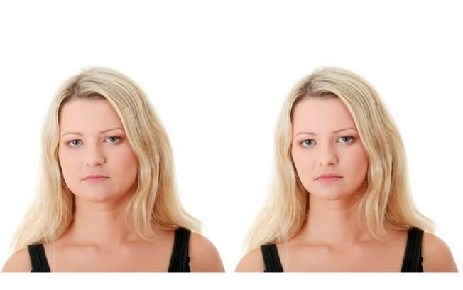 Na esquerda, rosto da modelo antes do processo de afinar o rosto. A esquerda a mesmo modelo após o processo,.