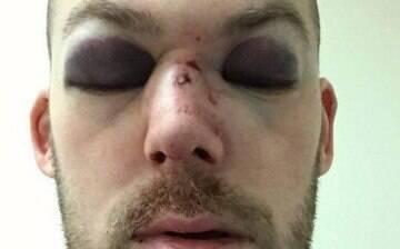 Atleta de críquete leva bolada e fratura nada menos do que 15 ossos do rosto