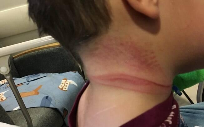 É possível os arranhões que o menino fez no pescoço para tentar se livrar da corda que quase o enforcou no acidente doméstico