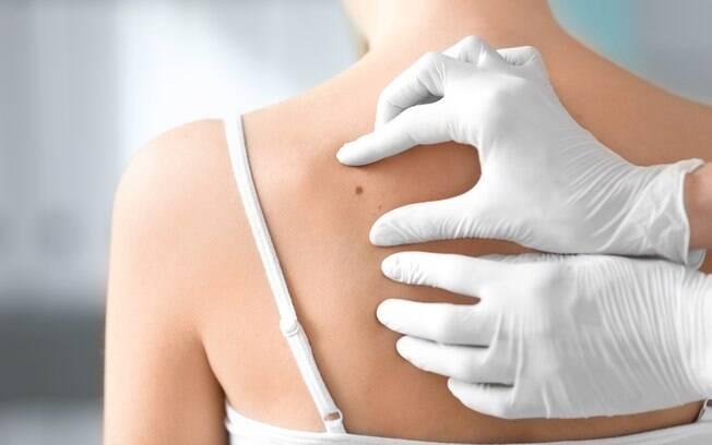 O melanoma, tipo raro de câncer de pele, parece uma pinta nas fases iniciais, mas leva à morte em 30% dos casos