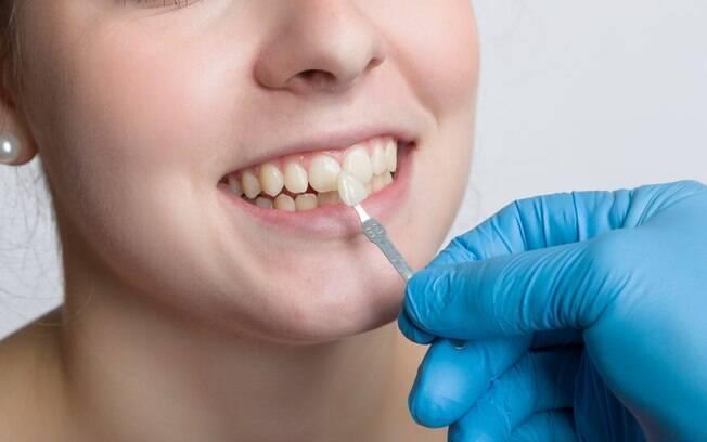 Semelhantes às lentes de contato oculares, as lentes de contato dentais não necessitam de anestesia