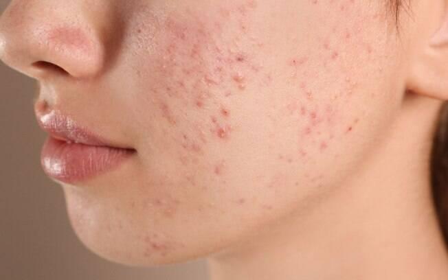 Tudo o que você precisa saber sobre as cicatrizes de acne!