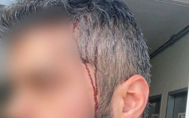 Sobrinho de Bolsonaro teria invadido casa e agredido atual companheiro da ex-namorada