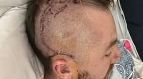 Jogador passa por cirurgia após bolada